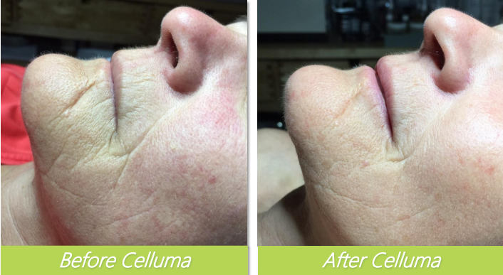 Celluma 6 - Bethel Day Spa