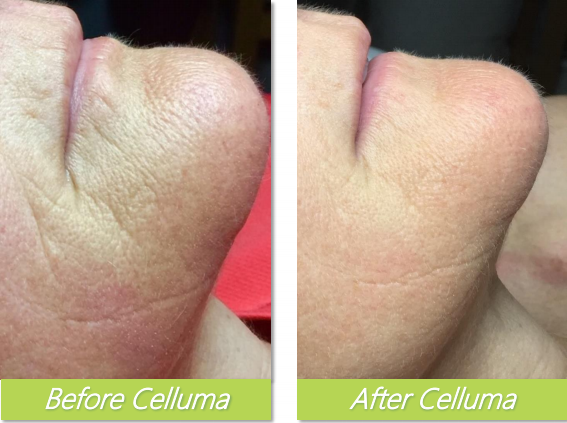Celluma 4 - Bethel Day Spa