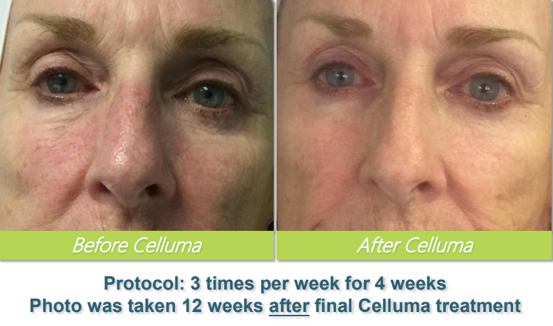 Celluma 2 - Bethel Day Spa