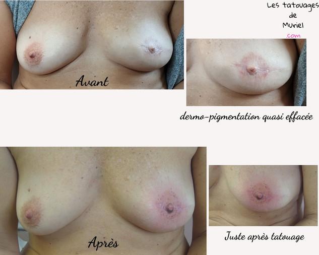 Avant_après_tatouage_3D_réparateur_du_se