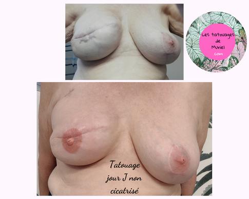 Les tatouages de muriel saint-lys toulouse tatouage réparateur sein mamelon aréole suite chirurgie mammaire cancer du sein maquillage permanent.png