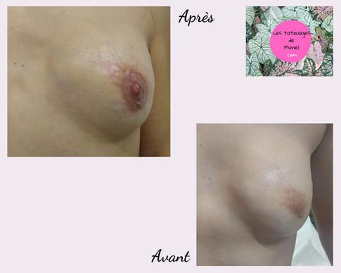 Après avant les tatouages de Muriel sein