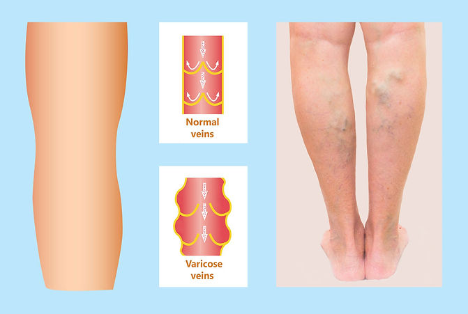 varicose veins vs normal veins