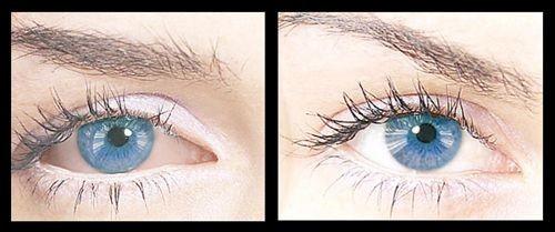 collyre-bleu-eye-drops-before-after-500x500.jpg