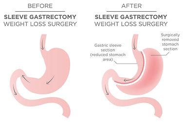 2_Sleeve-gastrectomy.jpg