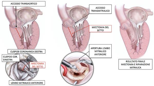 Cardiomiopatia Ipertrofica Ostruttiva - HOCM