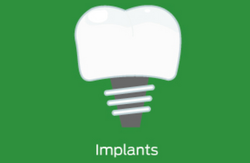 T-Scan implants