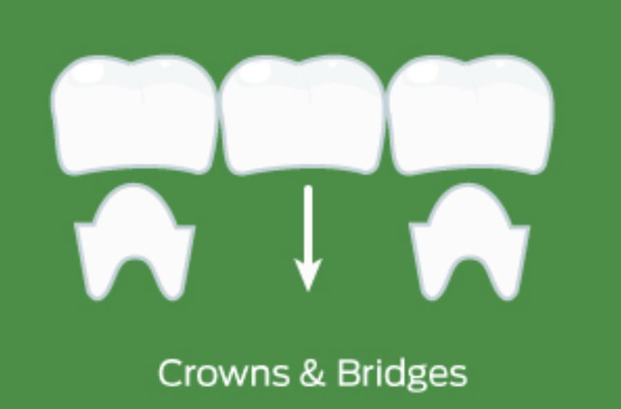 Crown & Bridges
