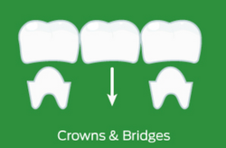 Crown & Bridges