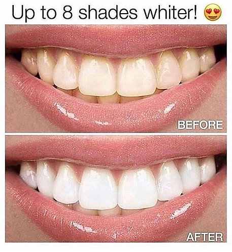 Teeth Whitening  28 Strips