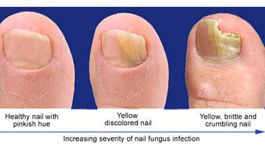 NAIL FUNGUS: SYMPTOMS AND TREATMENT!