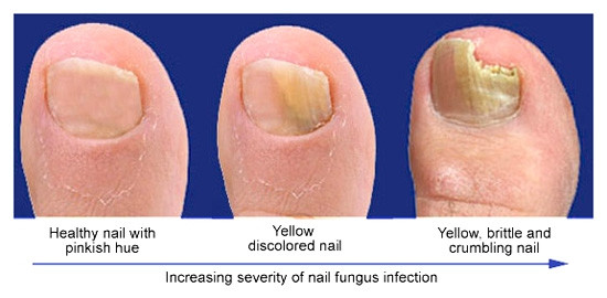 NAIL FUNGUS: SYMPTOMS AND TREATMENT!