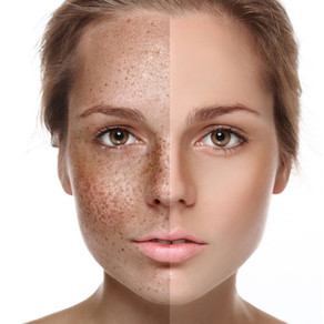 COSMELAN: The only Depigmentation Treatment that WORKS