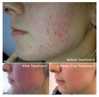 Micro-Needling for ACNE SCARS at My Perfect Body