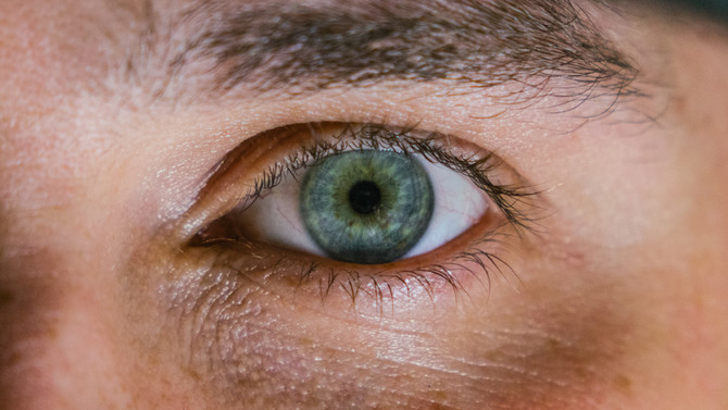 10 Scary Things Your Eyes Say About Your Health