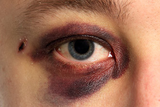 6 things you can do to help speed up the healing process for a black eye.