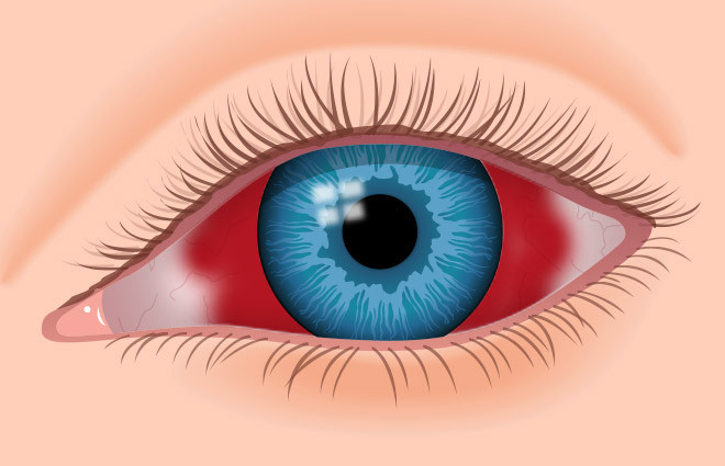 What causes blood in your eyes?