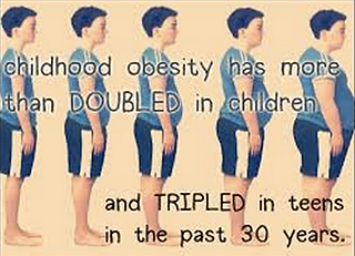obesity in kids over 30 years.png