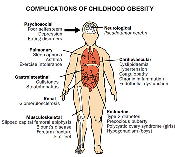 childhood_obesity_complications.png