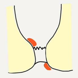 치핵(치질)