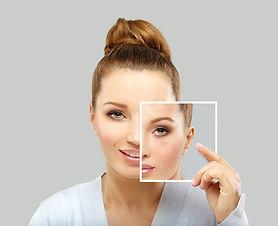 Treating Acne Scars.jpg