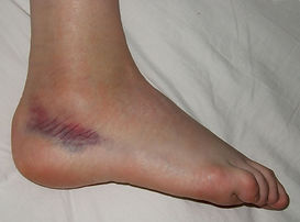 Shows the swelling from an ankle sprain