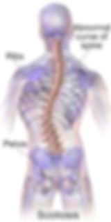 spinal misalighnment
