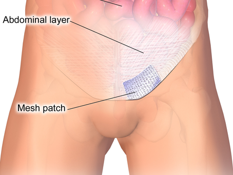 What to do if you are an athlete and have an abdominal hernia or sports hernia