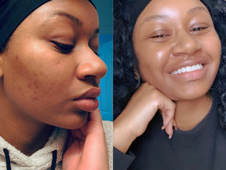 Beauty Editor: I Ditched My Facial Cleansers and My Skin Is Better