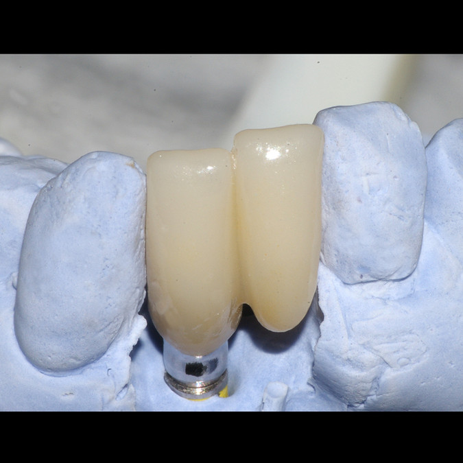 High Trans Zirconia on a Custom Abutment