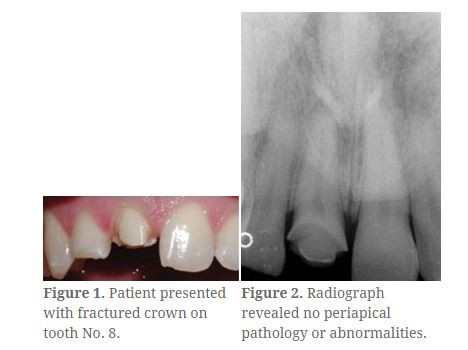 Natural Reproduction of the Maxillary Central Incisor: