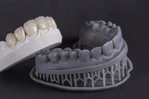 Layered Zirconia and 3D Model