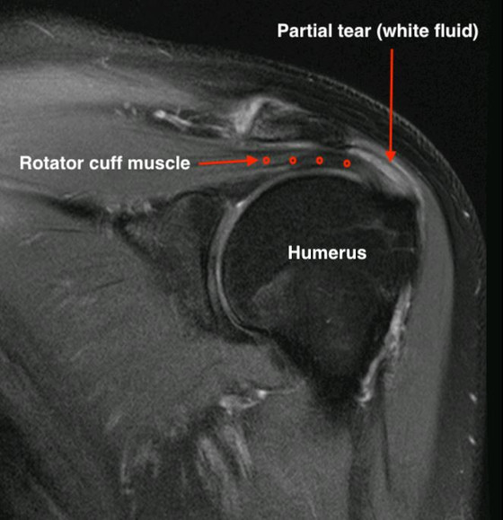 Will my rotator cuff heal? (or will the pain at least go away?)