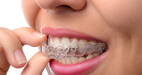 photo-service-mouthguards.jpg