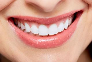 Teeth whitening at Evergreen Dental Group in Kirkland, WA