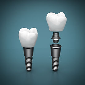 Comprehensive implant therapy at Evergreen Dental Group in Kirkland, WA