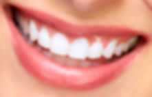 Free smile makeover consultation at Evergreen Dental Group in Kirkland, WA