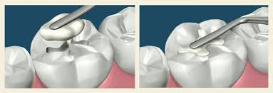 Dental Fillings at Evergreen Dental Group in Kirkland, WA