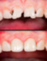Dental Bonding at Evergreen Dental Group in Kirkland, WA