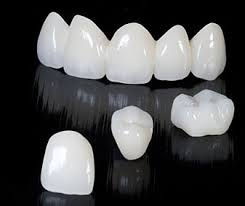 Each crown is designed to resemble natural tooth at Evergreen Dental Group in Kirkland, WA