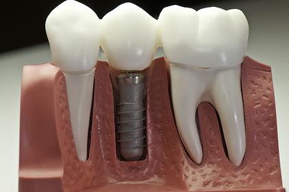 Dental Implants at Evergreen Dental Group in Kirkland, WA