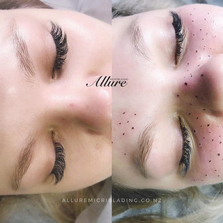 To some, natural freckles may be a sourc