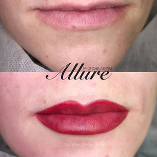 Restore your lips to their youthful appe
