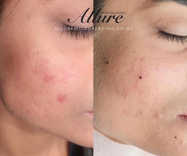 Little beauty spots , designed by client