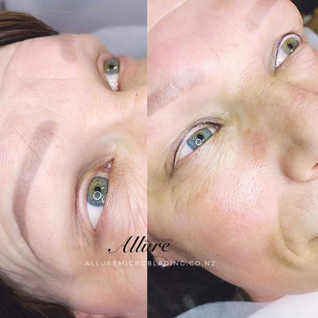 Eyeliner tattoo on alopecia client, matu