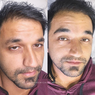 Microblading for Men