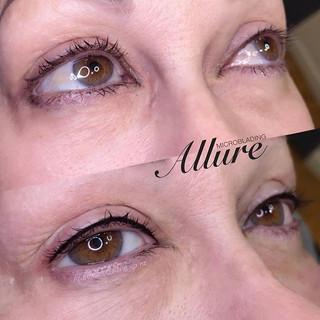 Beautiful top lash enhancement aka invis