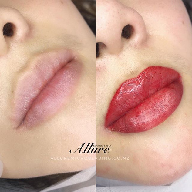 Freshly done another Lip contouring, blu
