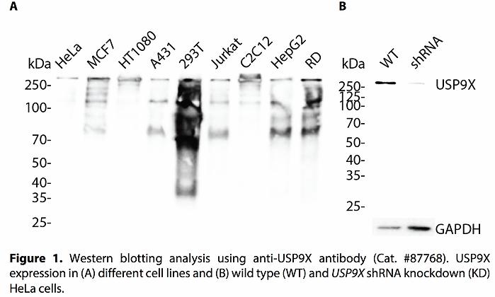 Validated USP9X Lentiviral shRNA #V87768