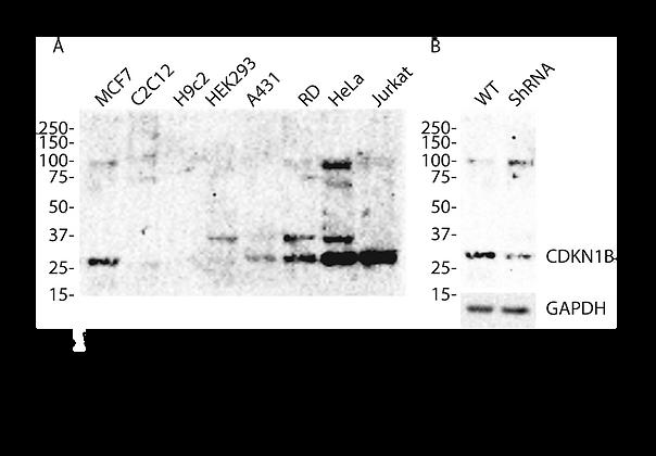 Anti-CDKN1B  Rabbit Monoclonal Ab #81241